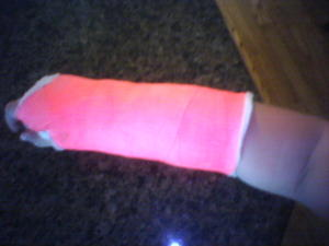 Pink_cast